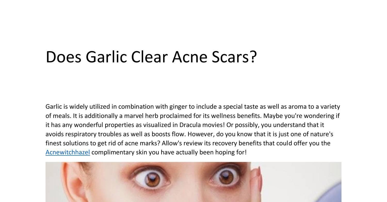 does garlic clear acne scars.pdf - docdroid